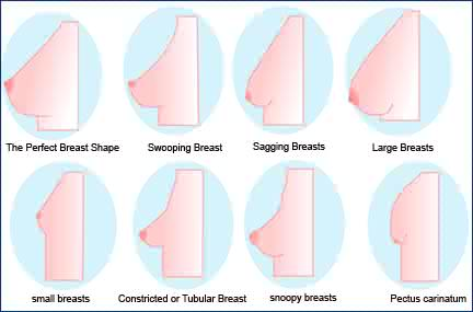 43b0c93df9818 How To Preventing Your Breast From Sagging